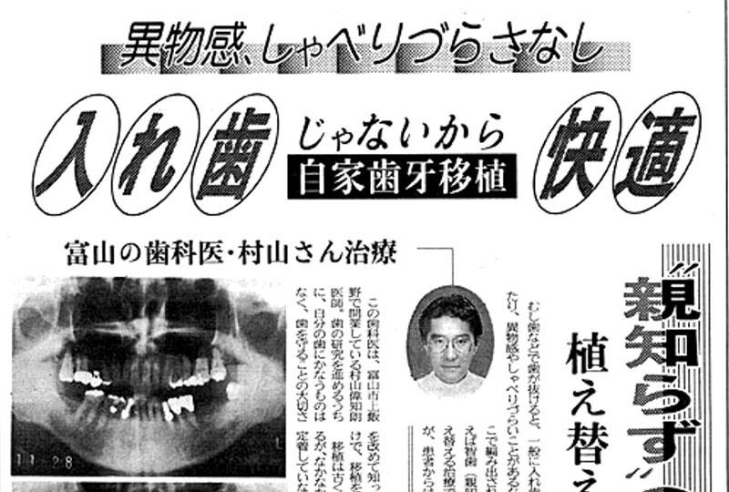 「自家歯牙移植と歯根膜の関係を知っていますか?」